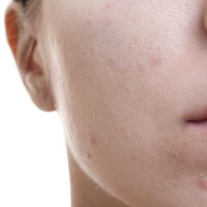 A photograph showing belmished skin relating to deep cleanse treatment