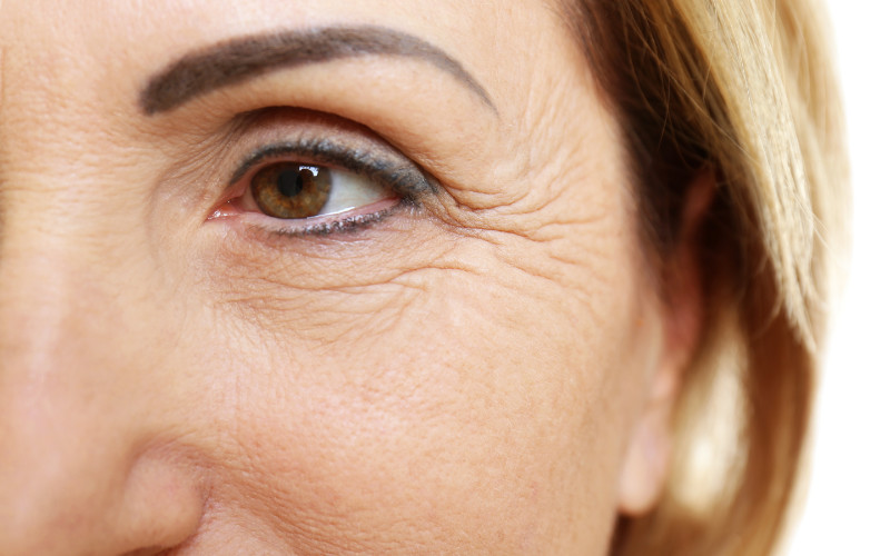 An image of a mature woman showing lines under her eyes and crows feet for the eye zone blog